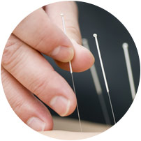 Try acupuncture for fertility